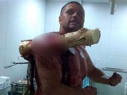 Шокирующее фото: белорусский экстремал «наделся» плечом на сосну (обновлено). 18+