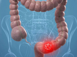 Около 80% случаев колоректального рака можно предотвратить благодаря профилактическим исследованиям
