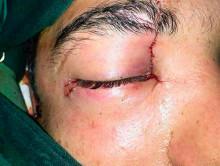 Жителю Солигорска воткнули нож в глаз, но после операции он остался жив и сохранил зрение (ОСТОРОЖНО, ШОК-КОНТЕНТ, 18+)