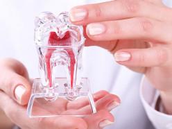 Депульпирование—единственно возможный метод сохранения зуба призапущенномпульпите